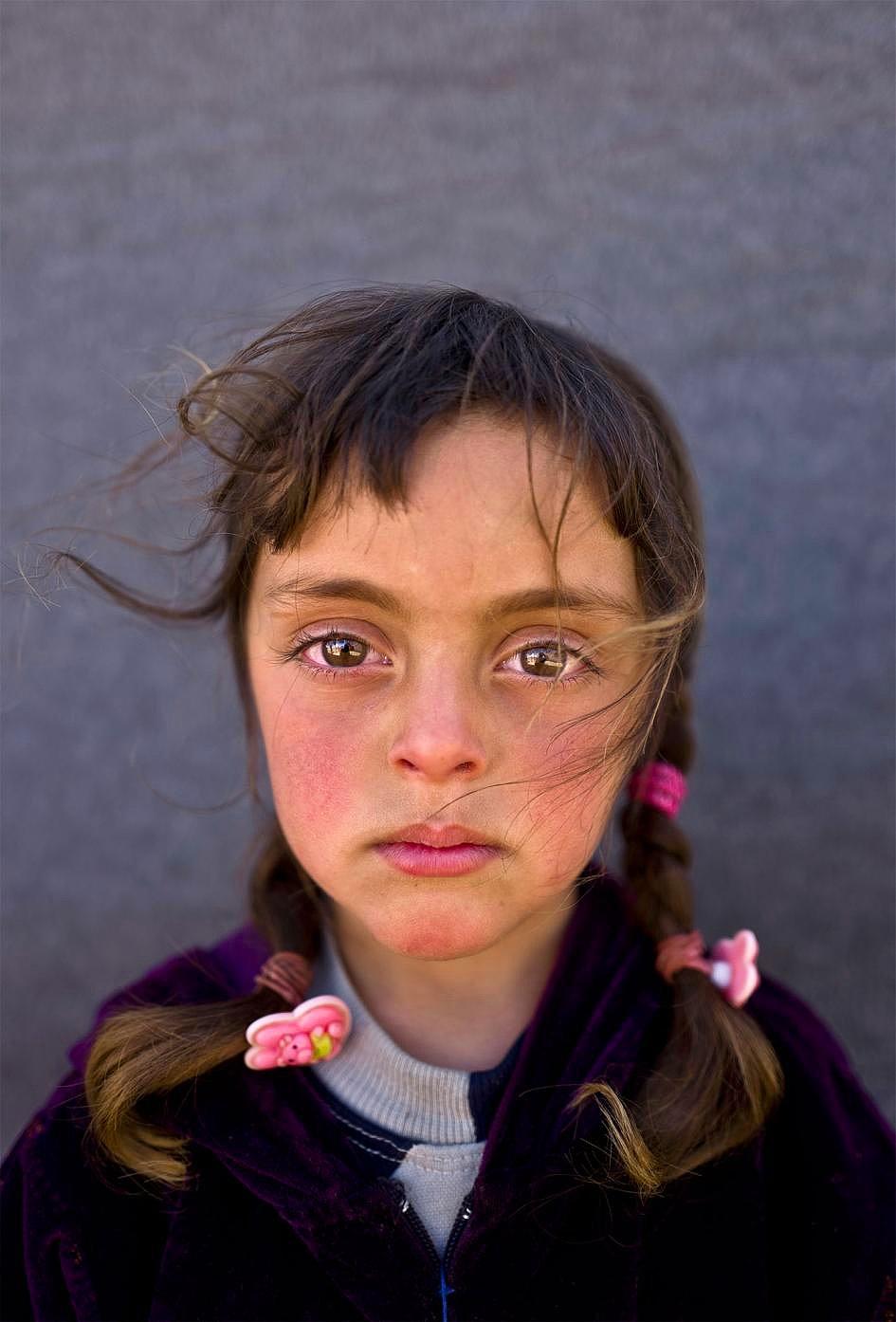Savaşın Acısı Onların Gözlerinde 1