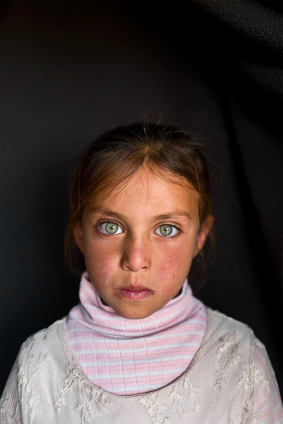 Savaşın Acısı Onların Gözlerinde 7