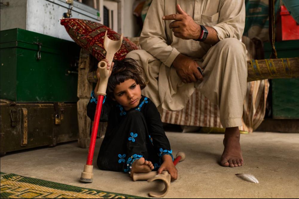 7 Afgan çocuk patlama sonrası tekrar yürümeyi öğreniyor 10