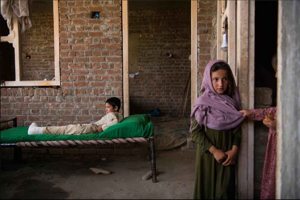 7 Afgan çocuk patlama sonrası tekrar yürümeyi öğreniyor 11