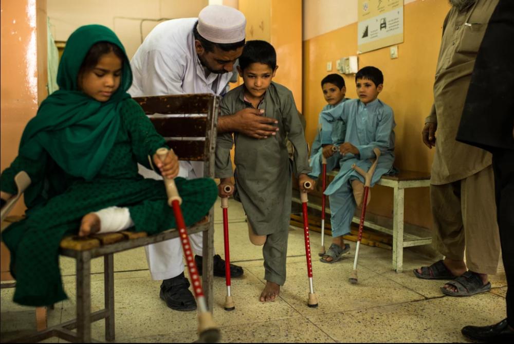 7 Afgan çocuk patlama sonrası tekrar yürümeyi öğreniyor 14