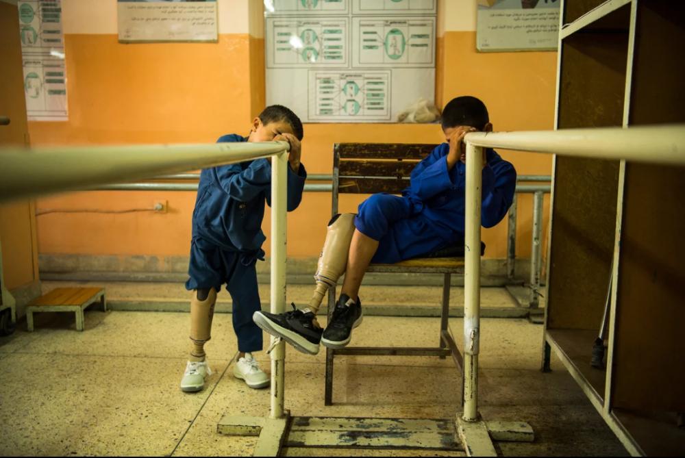 7 Afgan çocuk patlama sonrası tekrar yürümeyi öğreniyor 16