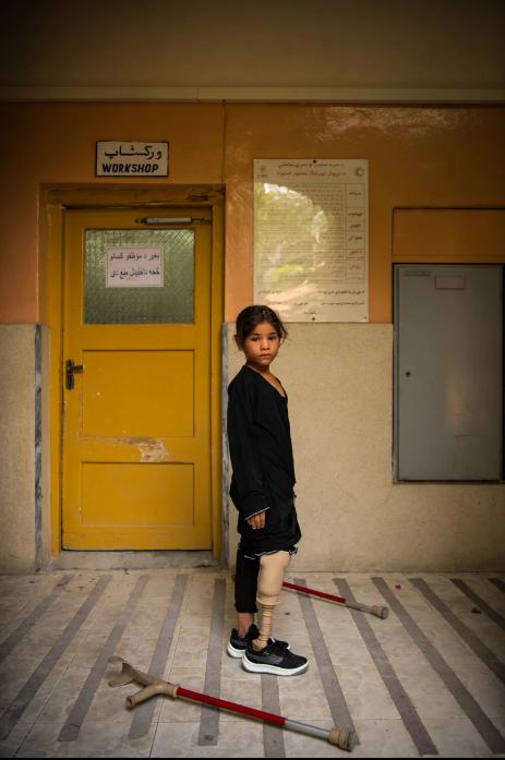 7 Afgan çocuk patlama sonrası tekrar yürümeyi öğreniyor 17