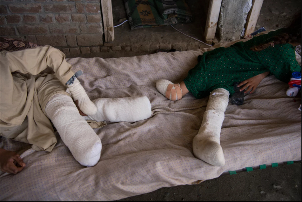 7 Afgan çocuk patlama sonrası tekrar yürümeyi öğreniyor 7