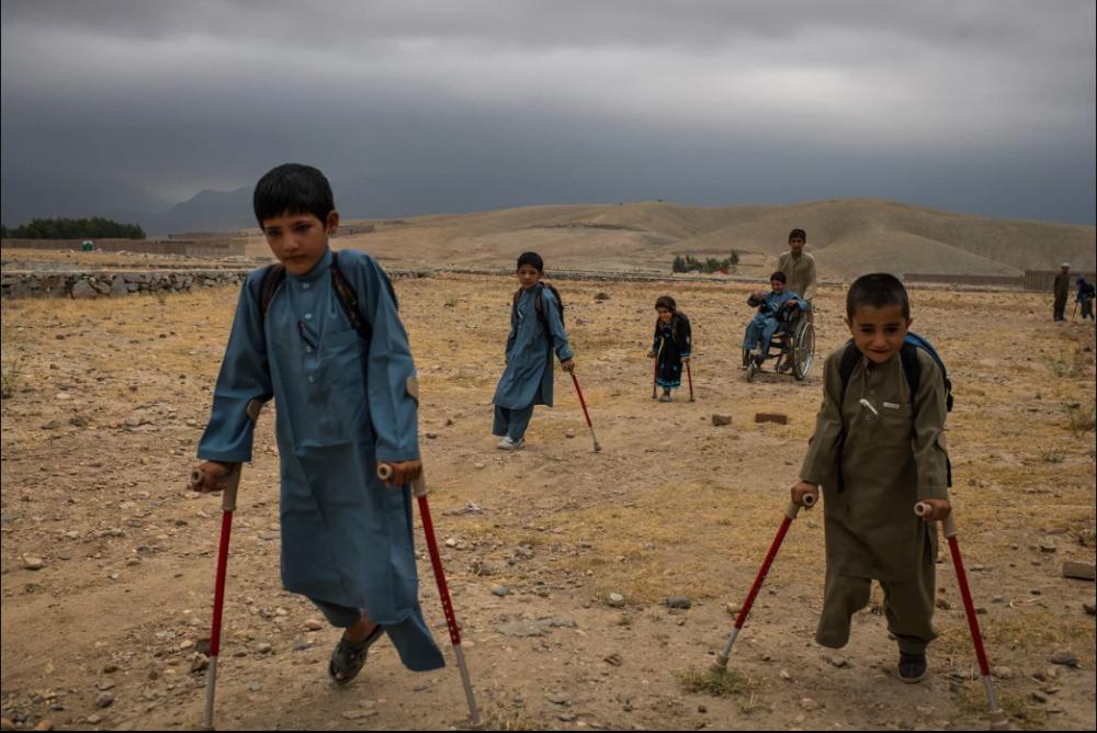 7 Afgan çocuk patlama sonrası tekrar yürümeyi öğreniyor 8