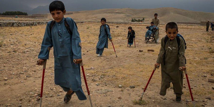7 Afgan çocuk patlama sonrası tekrar yürümeyi öğreniyor