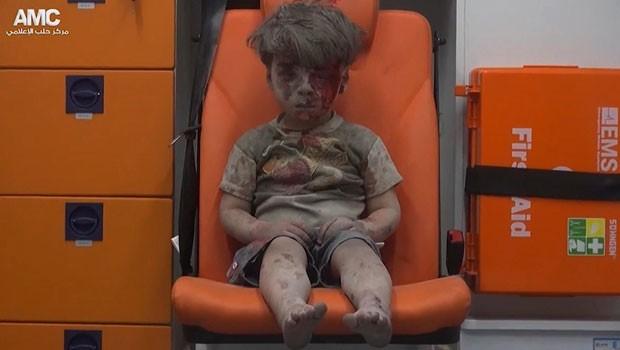 İnsanlığı Utandıran Bir Çocuk: Ümran