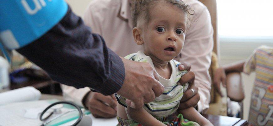 Yemen'de geçtiğimiz yıl her gün 5 çocuk öldü ve yaralandı