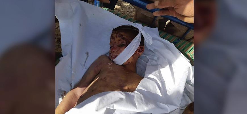 Afganistan'da ABD ve hükümet güçleri onlarca sivili katletti