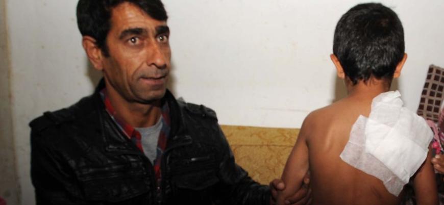 Suriyeli mülteci çocuğa kaynar su saldırısının cezası 3 bin lira