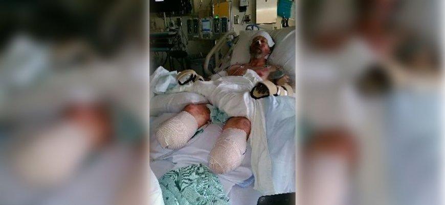ABD'de köpeğin yaladığı adamın kol ve bacakları kesildi