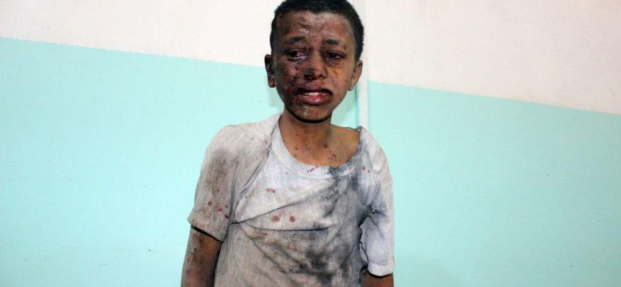 'Neden öldürüldüler?': Suudi koalisyonu Yemen'de çocukları vurdu