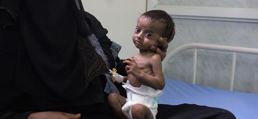 """""""Yemen'de çocuklar ağlayamayacak kadar zayıf"""""""