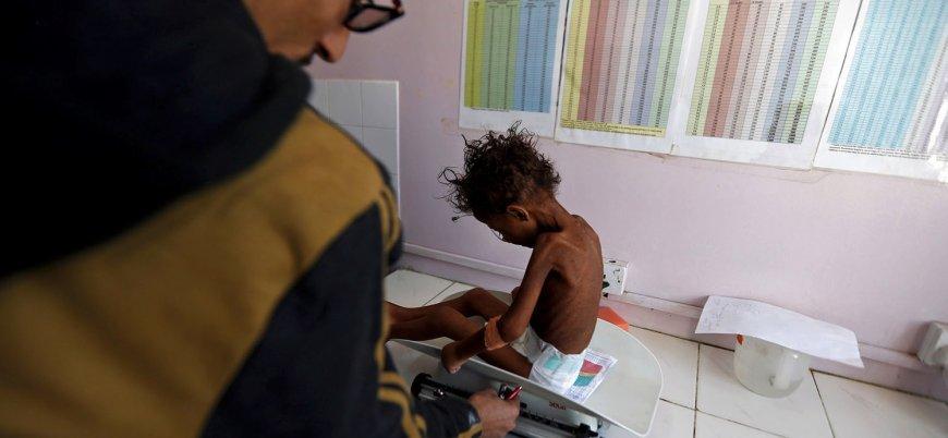 BM: Yemen'de durum dayanılmaz bir hal aldı