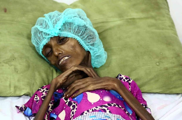 Yemen mutlak çöküşün eşiğinde