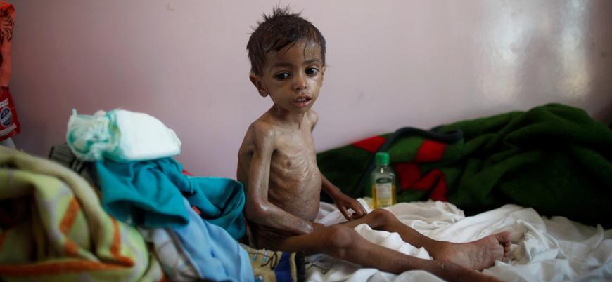 21'inci yüzyılın en büyük insani krizlerinden biri: Yemen
