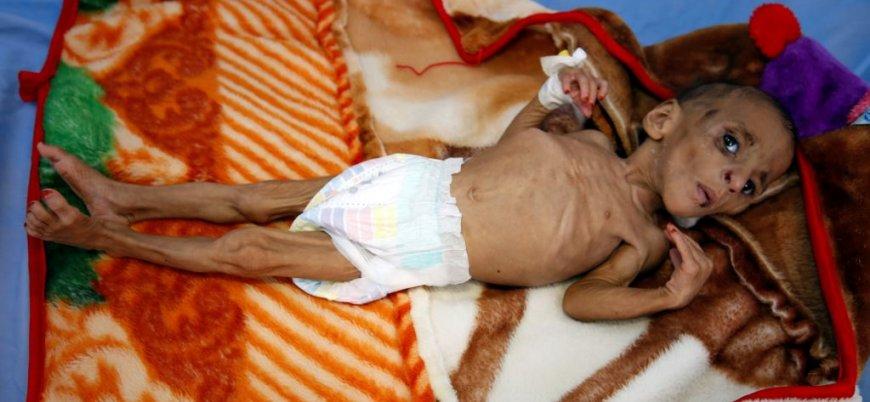 Yemen'de son 100 yılın en büyük açlık krizi yaşanacak