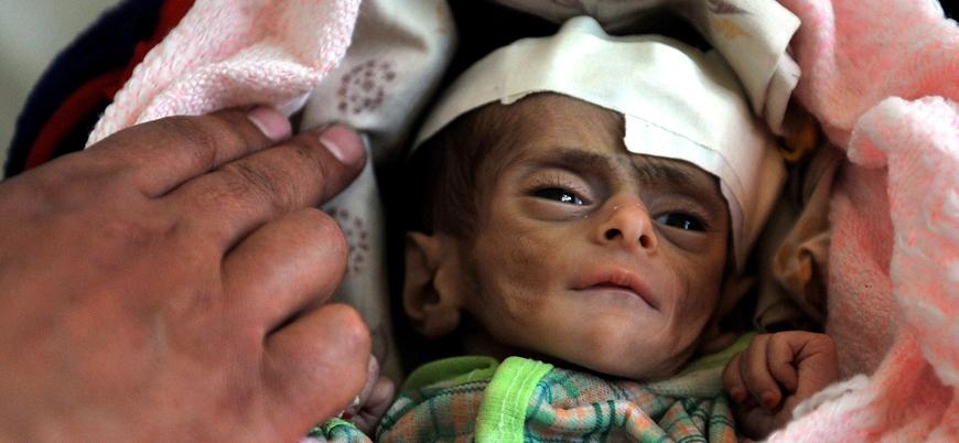"""""""Yemen'de 85 bin çocuk açlıktan öldü"""""""