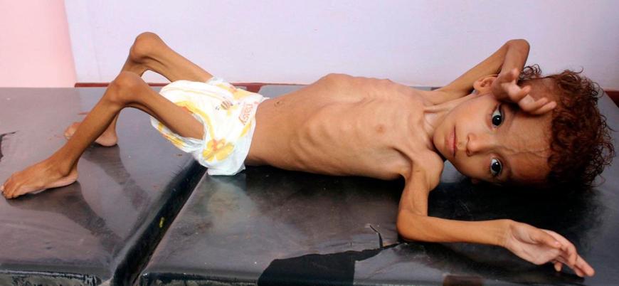 Yemen'de açlık nedeniyle bir nesil yok olabilir