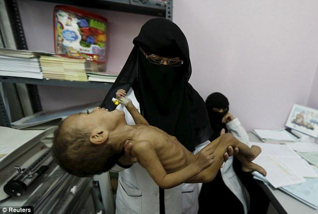 Yemen'de halkın yüzde 51'i temel gıda maddelerinden mahrum
