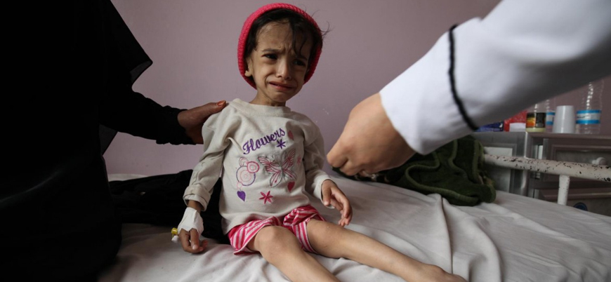 Yemen'de 7 milyondan fazla çocuk açlıkla boğuşuyor
