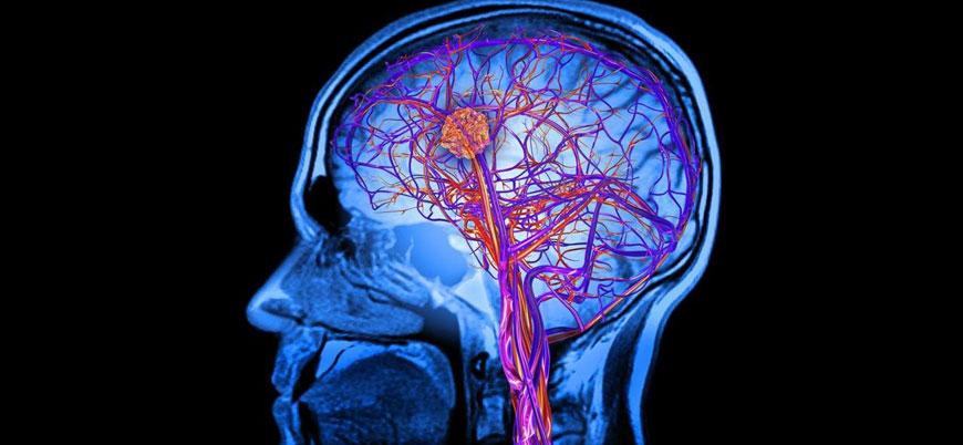 İnsan beyninde bilinmeyen bir bölge bulundu