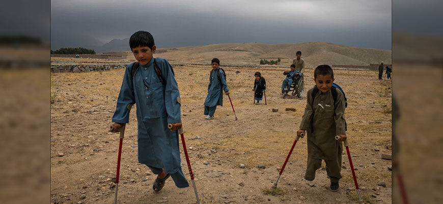 Galeri | 7 Afgan çocuk patlama sonrası tekrar yürümeyi öğreniyor