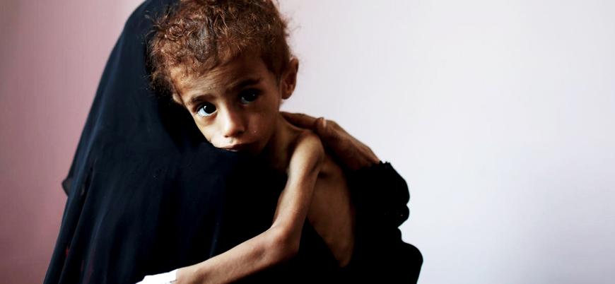 Dünya çapında 50 milyon çocuk acil yardıma muhtaç