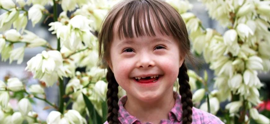 Hastalık değil genetik farklılık: Dünya Down Sendromu Günü