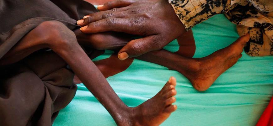 'Durumun değişmesi olası değil': Dünyada 113 milyon insan açlık çekiyor