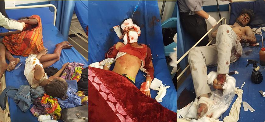 Suudi koalisyonu Yemen'de sivilleri vurdu: 4'ü çocuk 6 ölü