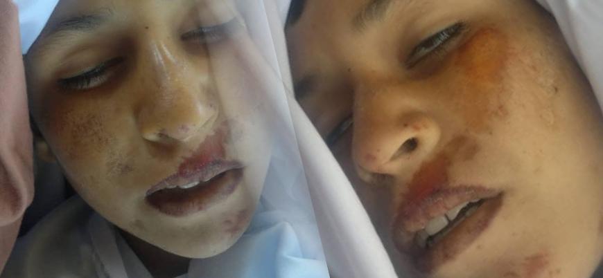 Kabil hükümeti Afganistan'da çocukları vurdu: 8 ölü