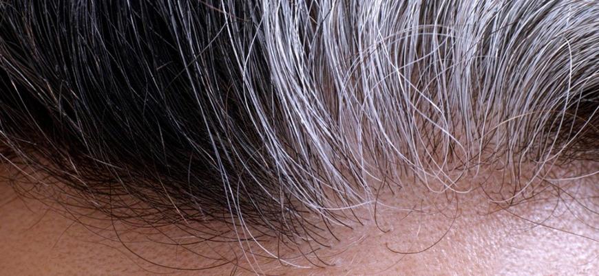 Araştırma: Stres saçı beyazlatıyor