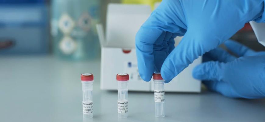 Çin'in İspanya'ya gönderdiği koronavirüs test kitleri bozuk çıktı