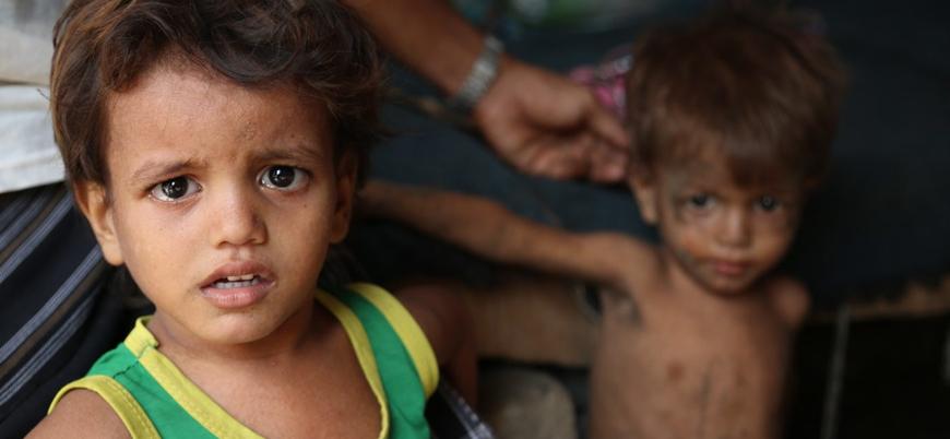 Yemen'de 5 milyondan fazla çocuğun hayatı tehlikede