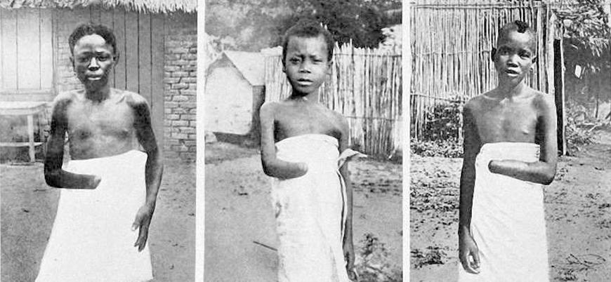 Belçika Kralı tarihte ilk kez Kongo'da yapılanlar için özür diledi
