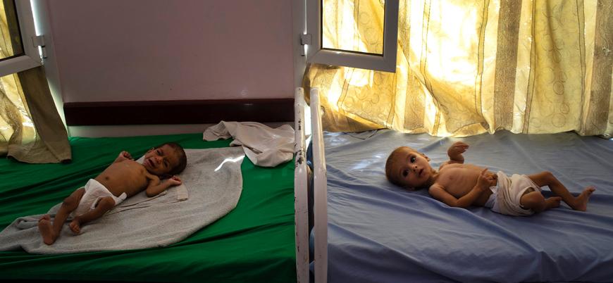 Yemen'de 2 milyon çocuk yetersiz besleniyor