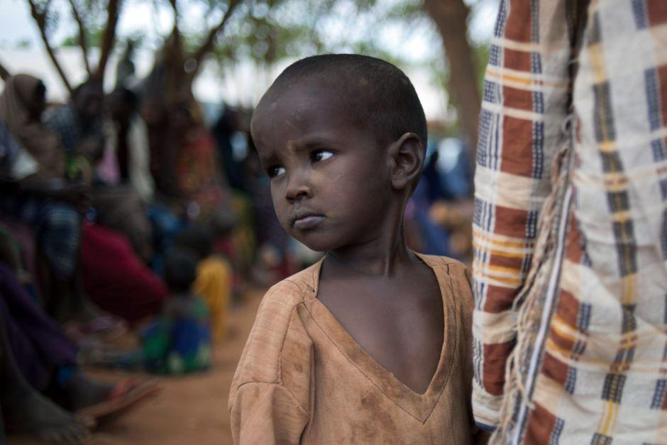 Somali'de çocuklar yaşamla ölüm arasında